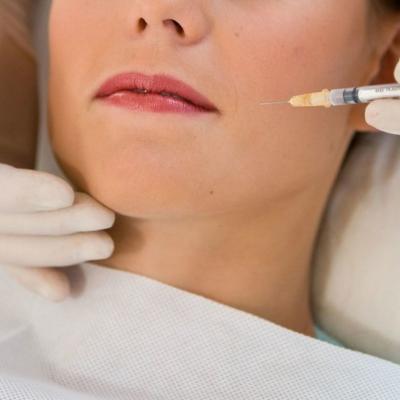 Botox para el bruxismo